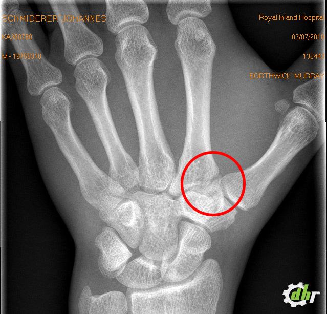 handwurzelknochen gebrochen foto downhill rangers